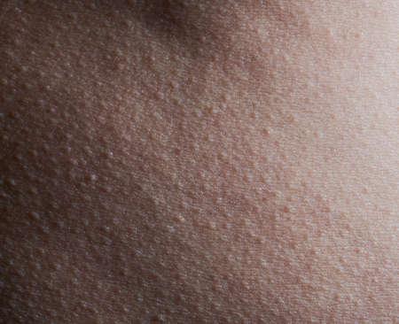 Photo pour Pattern of human skin with bumps macro close up view - image libre de droit