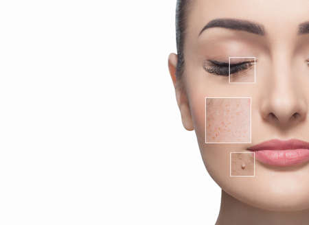 Photo pour Portrait of a beautiful woman on a white background, on the face are visible areas of problem skin - wrinkles and freckles. Cosmetology concept. - image libre de droit