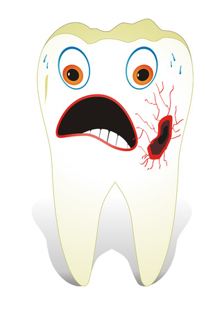 Vector illustration from teeth care concept, one unhealthy molar tooth.