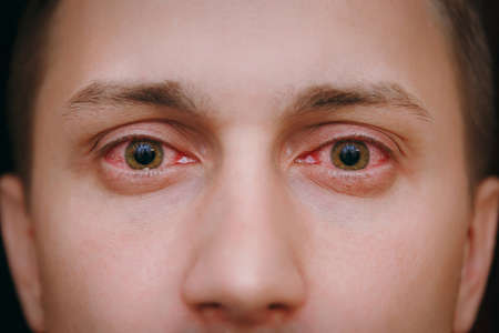 The close up of two annoyed red blood eyes of a man affected by conjunctivitis