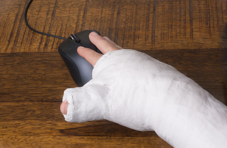 Photo pour A person wearing an arm cast after breaking their wrist having difficulty using a computer mouse - image libre de droit