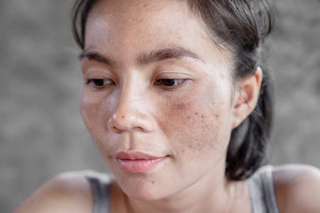 Photo pour closeup Asian woman face having skin problem with dark spot, freckle from uv light - image libre de droit