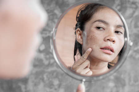 Photo for Asian woman having skin problem checking her face with dark spot, freckle from uv light in mirror - Royalty Free Image