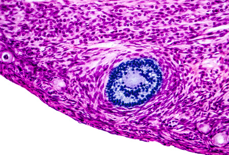 Ovarian follicles. Light microscopy, hematoxylin and eosin stain, magnification 200x. Colors are enhanced for better visualisation
