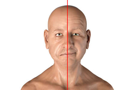 Photo for Facial nerve paralysis, Bell's palsy, 3D illustration showing male with one-sided facial nerve paralysis - Royalty Free Image