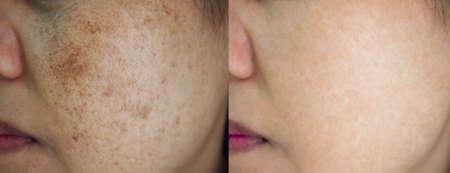 Photo pour Image before and after spot melasma pigmentation facial treatment on face asian woman.Problem skincare and health concept. - image libre de droit