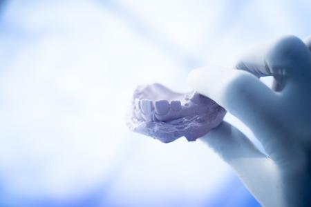 Dental mold dentist clay teeth plate ceramic colored cast model
