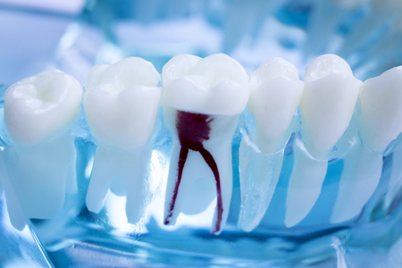 Foto für Dentist dental teeth teaching model showing each tooth and gum for patients and students. - Lizenzfreies Bild