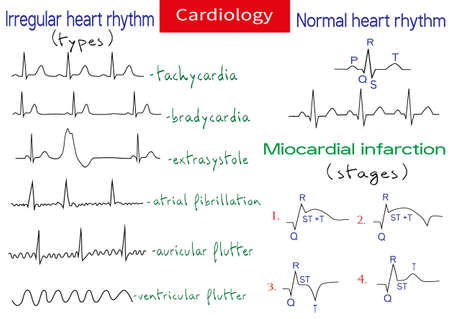 Normal and pathological ecg collection. Shematic vector illustration of different types of irregular rhythm and normal heart rhythm.
