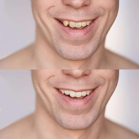 Photo pour Before after braces concept. Man smile close up collage. Male person. Dental oral care procedure. Stomatology treatment - image libre de droit