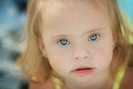 cheerful little girl with Down syndrome
