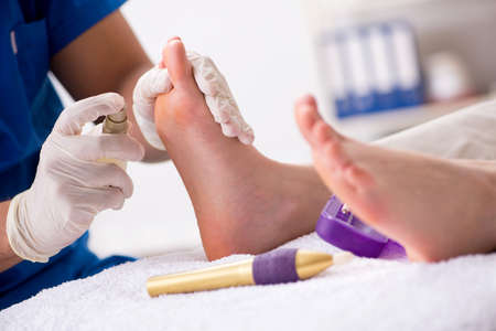 Foto de Podiatrist treating feet during procedure - Imagen libre de derechos