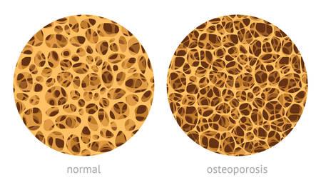 Illustration pour Bone spongy structure vector illustration, normal and with osteoporosis - image libre de droit