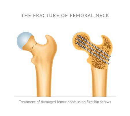 Illustration pour The fracture of femoral neck. Treatment of damaged femur bone neck using fixation screws - image libre de droit
