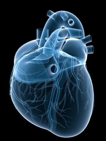 x-ray heart