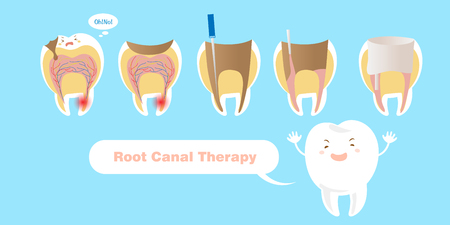 Illustration pour tooth with root canal therapy on the blue background - image libre de droit