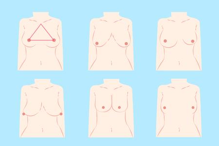 Illustration pour cartoon different chest shape on the blue background - image libre de droit