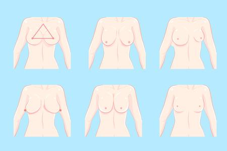 Ilustración de cartoon different chest shape on the blue background - Imagen libre de derechos