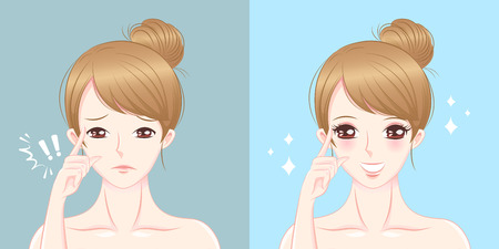 Illustration pour Woman with eye surgery before and after - image libre de droit