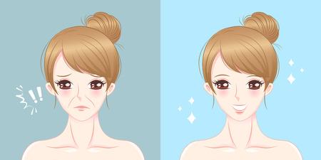 Illustration pour Woman with nasolabial folds problem on the blue background - image libre de droit