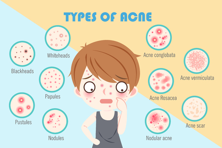 Illustration pour boy with types of acne on the blue background - image libre de droit