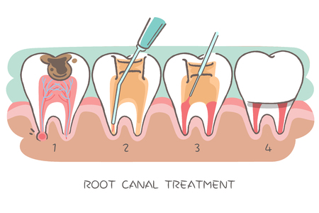 Illustration pour tooth with root canal treatment on the hwite background - image libre de droit