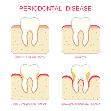 tooth dental periodontal gum disease periodontists
