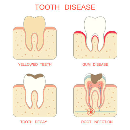 diseaseperiodontal tooth decay gum infection yellowed teeth root