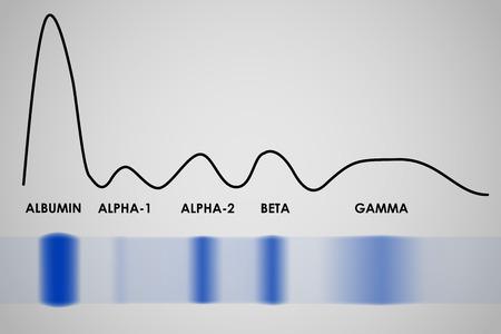 Vektor für Typical result of blood serum protein gel electrophoresis test - Lizenzfreies Bild