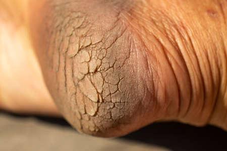 Foto de Woman' s heel break skin on wood, Close up & Macro shot, Asian Body skin part, Healthcare concept - Imagen libre de derechos