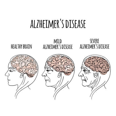 Illustration pour DEMENTIA Alzheimer Disease Memory Loss Brain Damage Medicine Health Treatment Therapy Banner Poster Vector Illustration - image libre de droit