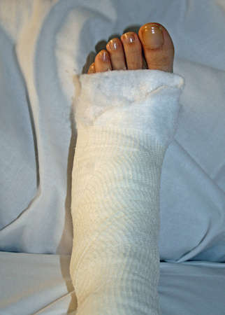 foot and leg bandaged after surgery in hospital