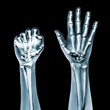 x-ray hands on black background