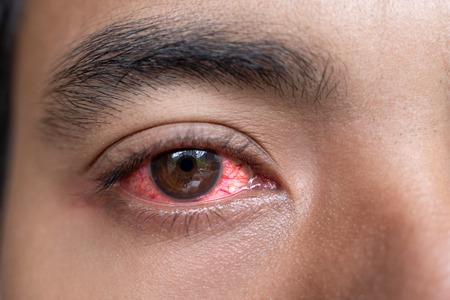 Photo for close up of man red irritated eyes - Royalty Free Image