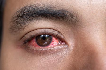 Foto de close up of man red irritated eyes - Imagen libre de derechos