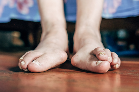 Barefoot which have bunion (hallux valgus) problem on wooden brown floor. Deformation of the joint connecting the big toe to the foot