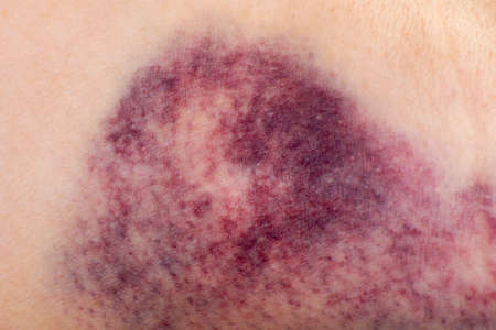 Photo pour Close up of a hematoma on the arm of woman. - image libre de droit