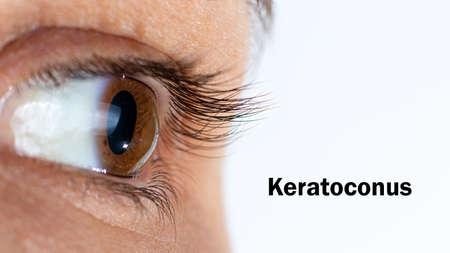 Photo pour Macro eye photo. Keratoconus - eye disease, thinning of the cornea in the form of a cone. The cornea plastic. Close up, banner. - image libre de droit