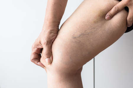 Photo for Varicose veins on the elderly asian woman leg,Close up - Royalty Free Image