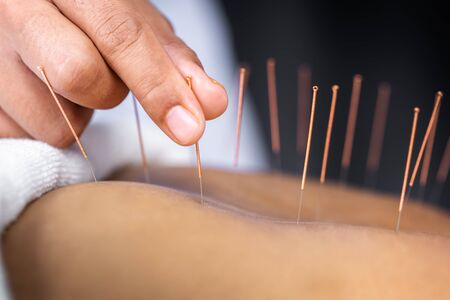 Photo pour Close-up of senior female back with steel needles during procedure of the acupuncture therapy - image libre de droit