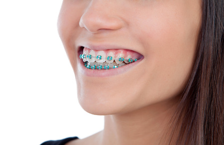 Photo pour Attractive young woman with brackets isolated on a white backgroung - image libre de droit