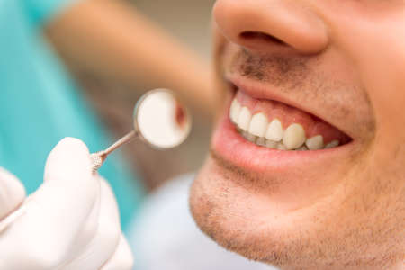 Close-up. Beautiful white teeth man on a review of the dantist