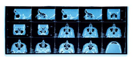 computer tomography of maxillary sinus. nasal septum deviation