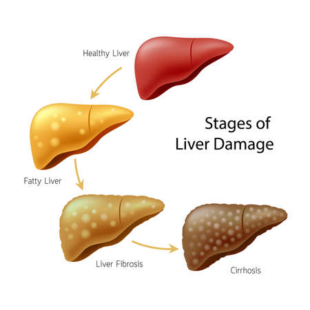 Illustration pour Stages of liver damage. Liver Disease. Healthy liver, fatty liver, liver fibrosis and Cirrhosis. Illustration info-graphic, isolated on white background. - image libre de droit