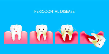 Illustration pour Step of periodontal disease. Healthy tooth and gingivitis. Dental care concept. Illustration isolated on blue background. - image libre de droit