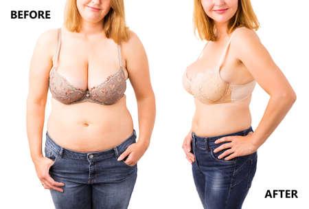 Foto de Woman before and after dieting - Imagen libre de derechos