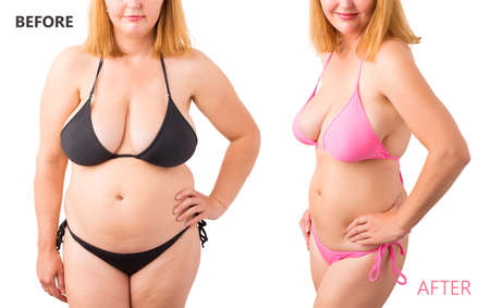 Photo pour Woman in bikini posing before and after weight loss - image libre de droit