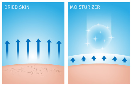Illustration for dried skin and skin with moisturizer , before and after - Royalty Free Image