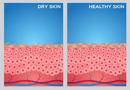 Illustration pour Dry skin, healthy skin texture , vector - image libre de droit