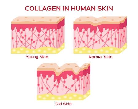 Illustration pour collagen in younger skin and aging skin , 3 type collagen skin version - image libre de droit